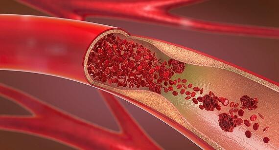 ZENLOOP 磁気炭素ネックレス 血行促進